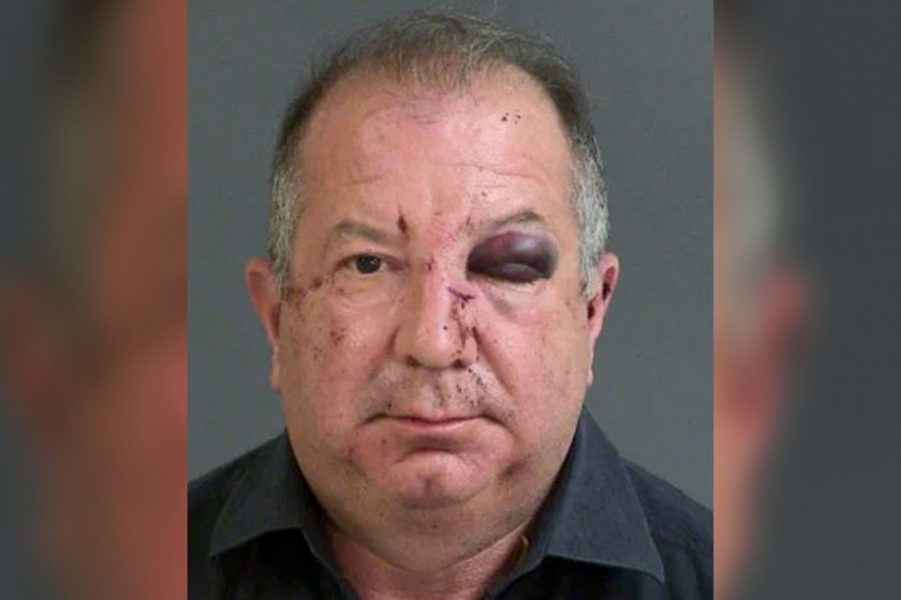 mug shot of Pano Michael Dupree showing his black eye and cuts and bruises