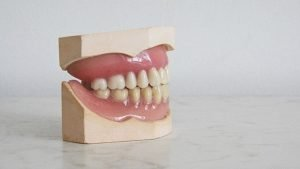 Set of false teeth